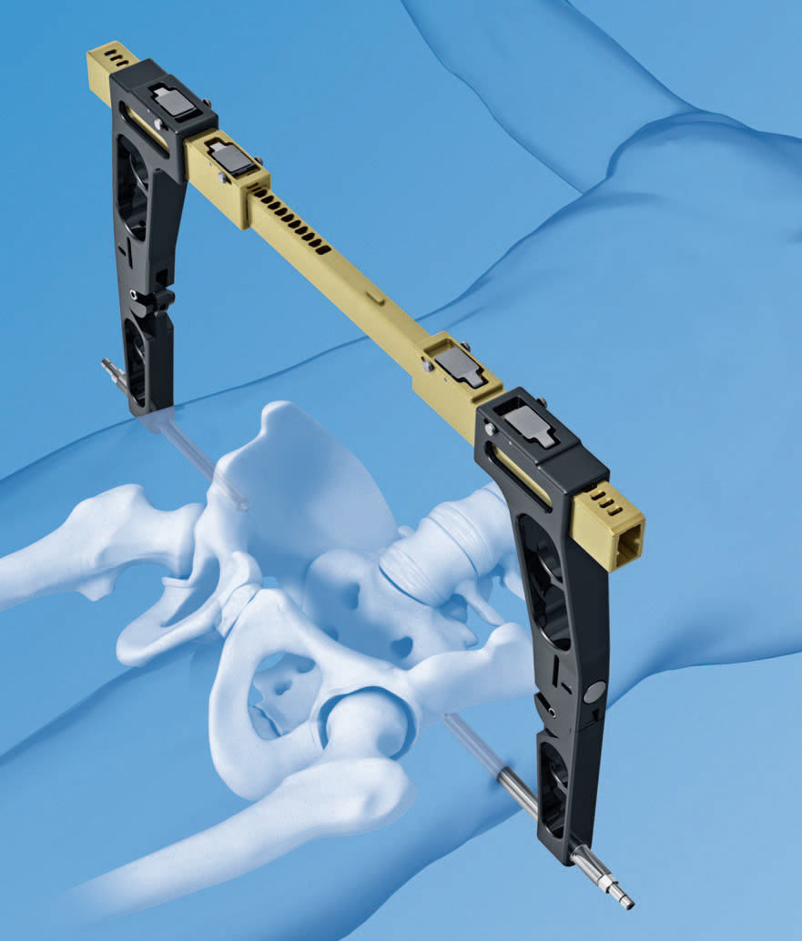 Depuy Synthes And Stryker Lead Orthopedic External Fixators Trauma