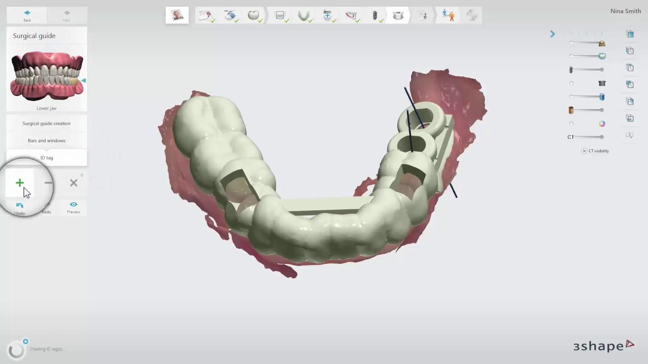 SprintRay 3D Printers Now Supported in 3Shape Implant Studio