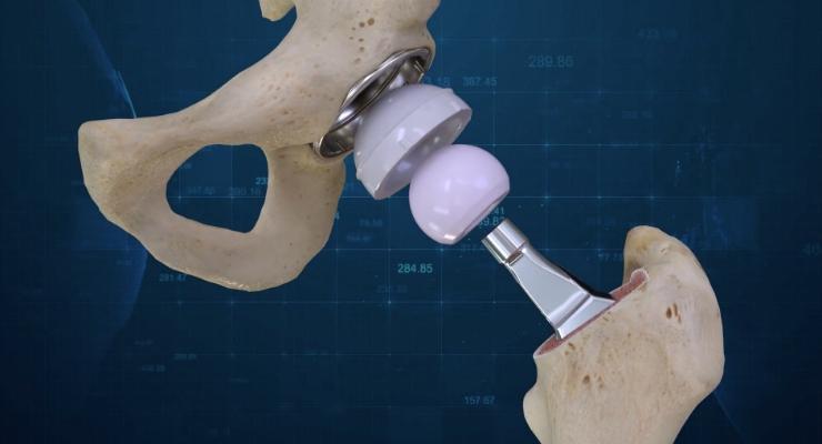 Conformis Announces the First 3D Total Hip Replacement Surgeries