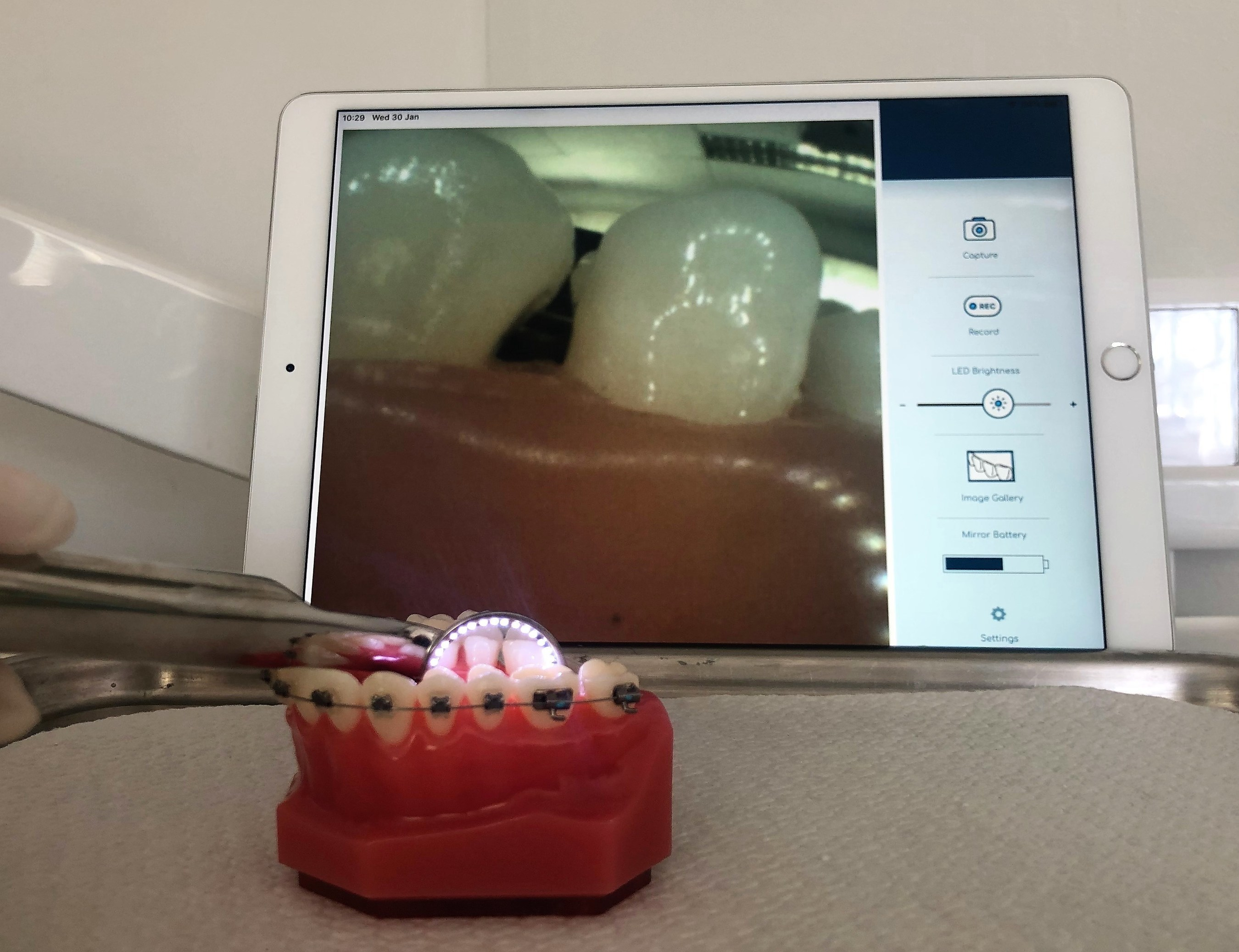 OmniVision Develops Breakthrough Smart Dental Mirror - iData