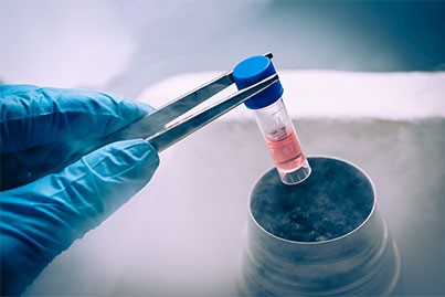 Assisted Reproduction Cryopreservation