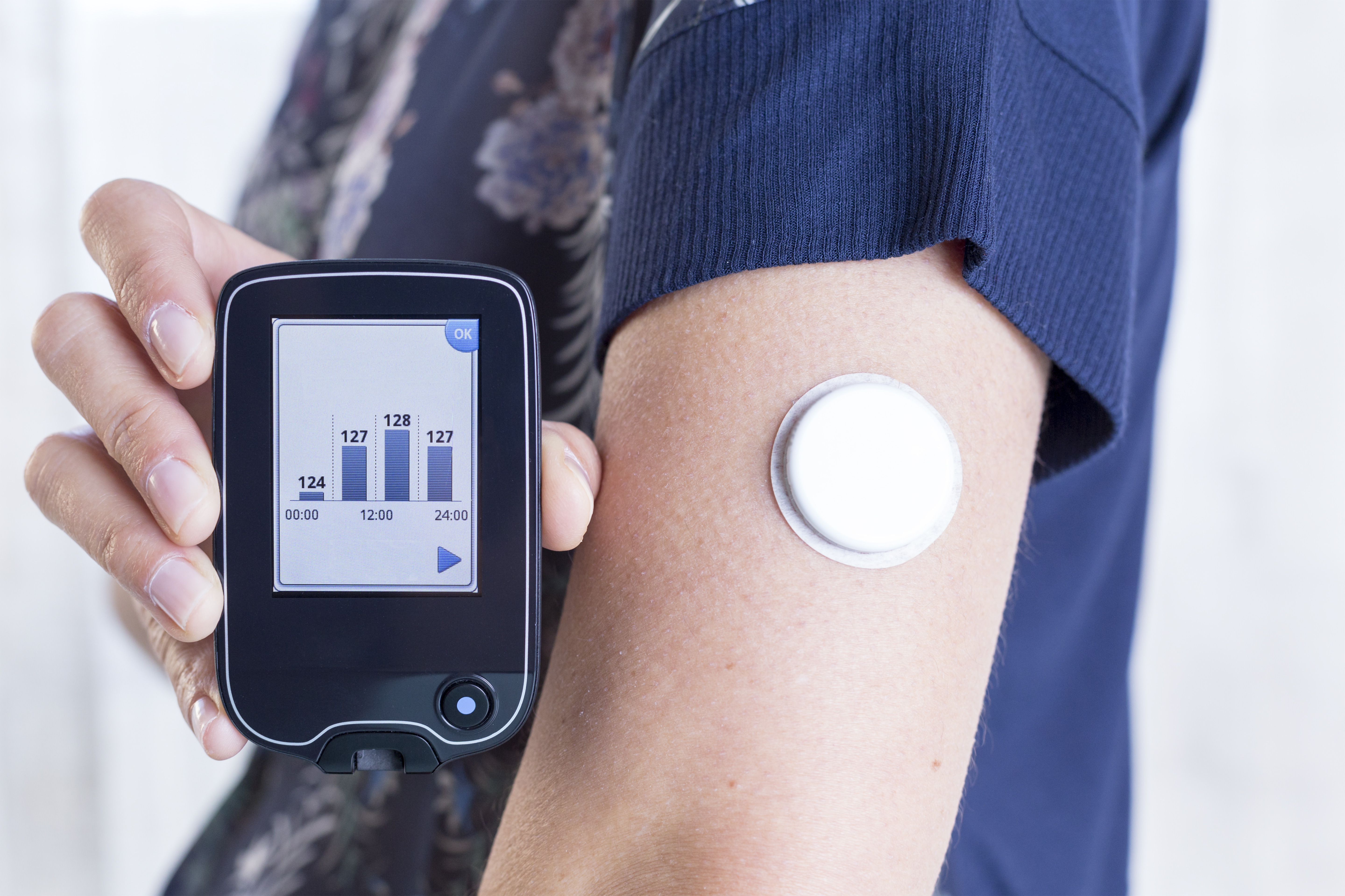 Continuous Glucose Monitoring Market Players - iData Research
