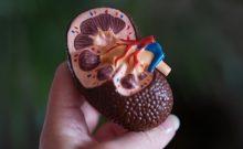 Kidney model photo iData