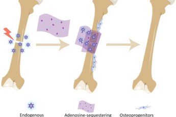 Bone Bandage Soaks up Adenosine Molecules to Speed Up Repair