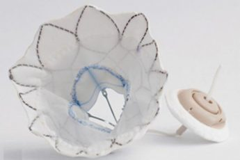 World's First Transcatheter Mitral Valve Approved in Europe