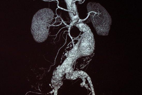 aortic_aneurysm