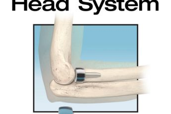 In2Bones launches Avenger system for radial head replacement surgery in US