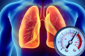 ACE-I and ARBs Do Not Increase COVID-19 Mortality