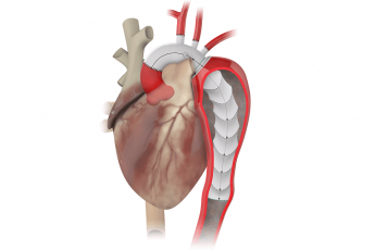 Terumo Aortic gains FDA breakthrough status for new aortic repair device