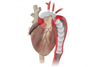Terumo Aortic gains FDA breakthrough status for new aortic repair device
