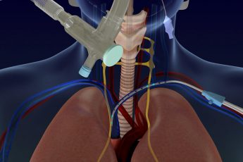 Lungpacer Medical gains FDA approval for diaphragm pacer therapy system