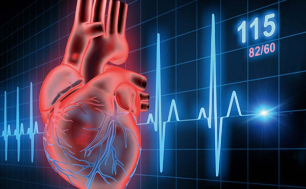 COVID-19 Causes a Significant Drop in Interventional Cardiology Procedure Numbers