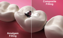Dental Amalgam vs Composite Materials