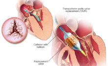 Transcatheter Aortic Valve Replacement (TAVR) market