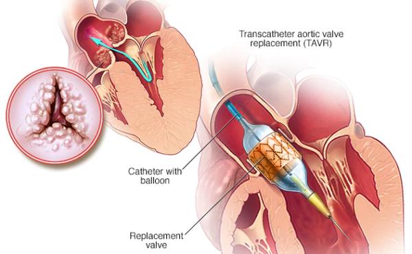 Transcatheter Aortic Valve Replacement (TAVR) market