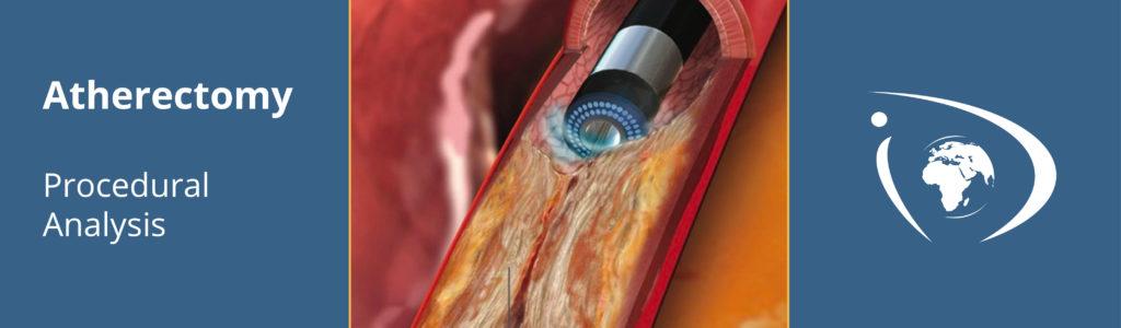 Atherectomy Procedure Analysis