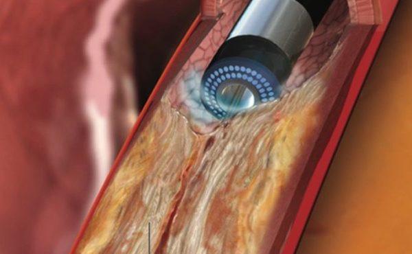 Atherectomy Procedure