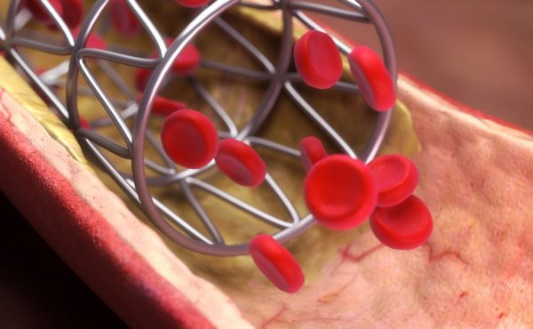 We have identified the different types of stents and analyzed their benefits and draw-backs: